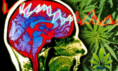 Epilepsy & Behavior Study: Those with Chronic Illnesses, CBD helps to improve Quality of Life