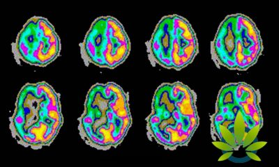 cbd used to treat two rare forms of epilepsy