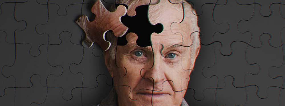 cbd anti-aging