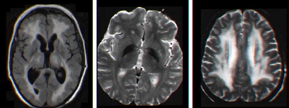 cbd Cognitive effects