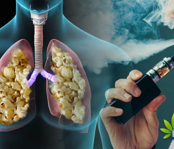 CBD Vaping Popcorn Lung FAQ: A Look at The Growing Health Concern