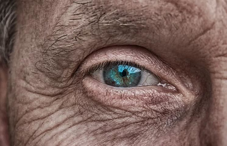 InMed Finds Cannabinol (CBN) Cannabinoid May Benefit a Rare Skin Condition and Glaucoma