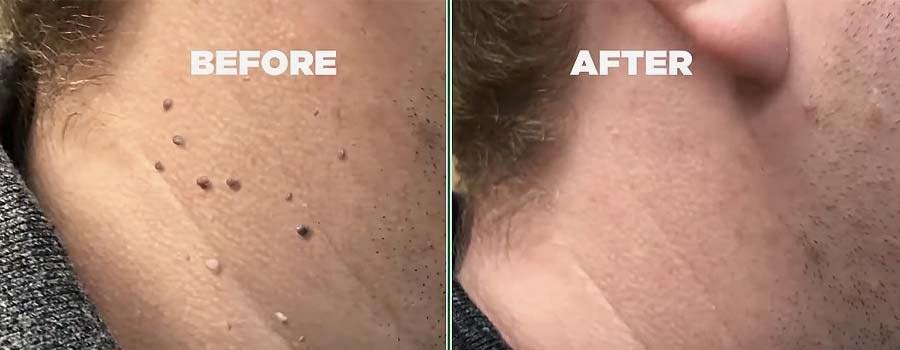 hempvana-endtag-skin-tag-remover